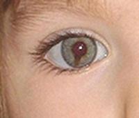 Maddy's eye